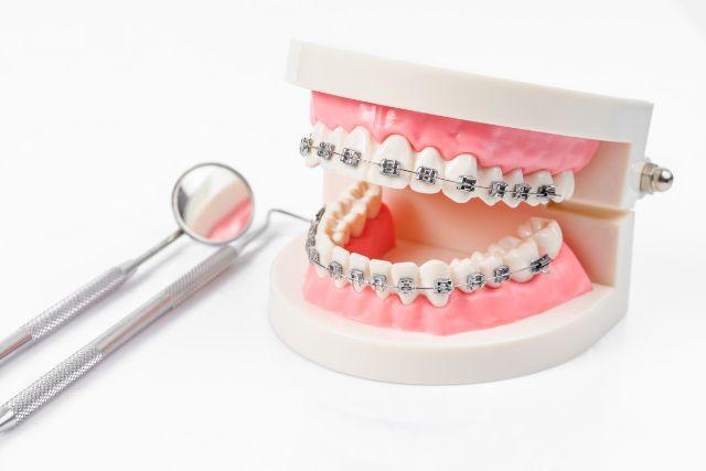 矯正装置を付けた歯列模型