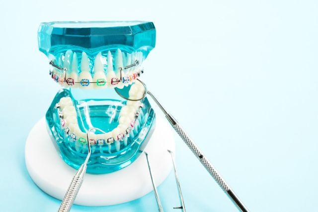 矯正装置を付けた青い歯列模型