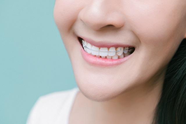 歯の矯正治療を行う人物