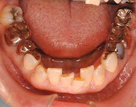 で 自分 前歯 矯正 歯並びを自力で治したい人必見!可能性のある歯並びと治し方・期間